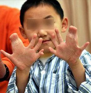 31 parmağı var