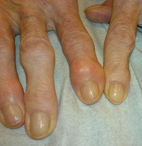 Osteoartrit en sık görülen eklem hastalığı