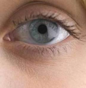 Göz migreni geçici görme kaybı nedeni
