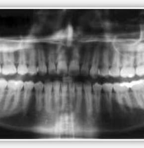 Diş röntgeni çektirende tiroit kanseri riski daha fazla