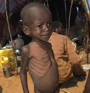 Aç çocuklar yollarda ölüyor