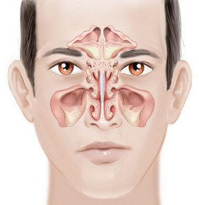 sinüzit     körlük     sinüsler     iltihabın göz çukuru içine yayılması
