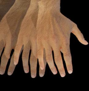 Parkinson hangi belirtilerle ortaya çıkıyor?