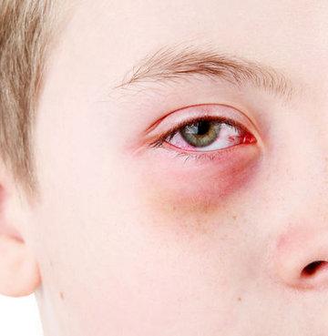 Göz kanlanması neyin belirtisi?