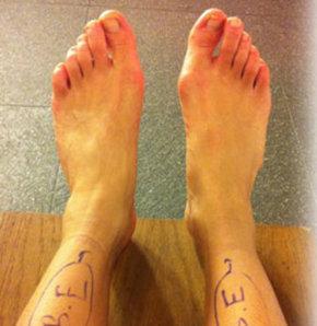 Ayakta valgus deformasyonu: prognoz ve zamanında tedavi