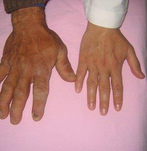 Türkiye'de binlerce yetişkin, akromegaliye yakalanıyor, el, ayak ve burun gibi organları aşırı büyüyor.