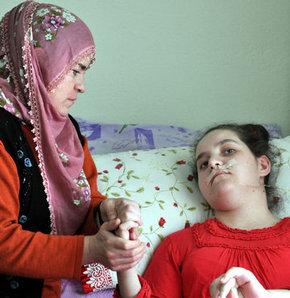 Kayseri'de 6 yıldır yatağa bağımlı yaşayan ve MS'in (Multip Skleroz) nadir görülen ağır seyirli bir türüyle mücadele eden 19 yaşındaki Kader Çetintaş'a (19) annesi 6 yıldır bebek gibi bakıyor.