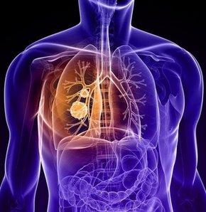 Akciğer kanseri ile kalp damar hastalıkları başta olmak üzere birçok hastalığın sorumlusu olarak gösterilen sigara, halk arasında