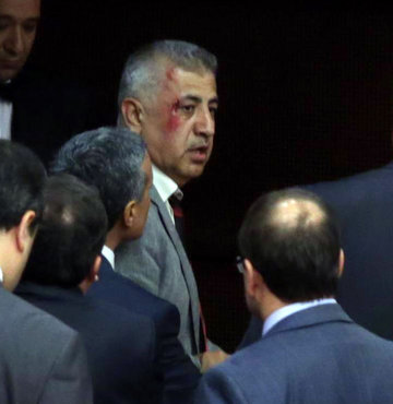 Yaralanan AK Partili vekil suç duyurusunda bulundu