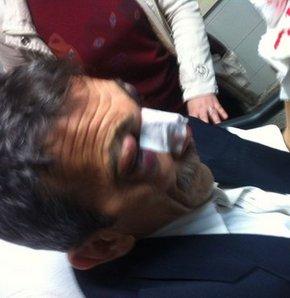 Okul bahçesindeki sopalı saldırıda 4 MHP'li yaralandı, MHP'lilere saldırı,