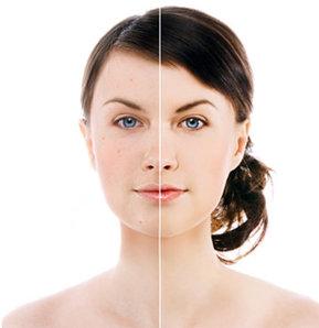 6 soruda anti-aging