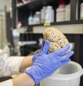 Acıları silmek mümkün mü? hafıza, anıların hafızadan silinmesi, nörobilim, travma