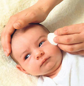 Bebeğinizin gözleri yaşarıyorsa dikkat, gözyaşı kanalı tıkanıklığı, bebeğimin gözleri yaşarıyor,Op. Dr. Veysel Celal Akbel, bebeğimde göz problem, bebeklerin göz sağlığı, göz bakımı