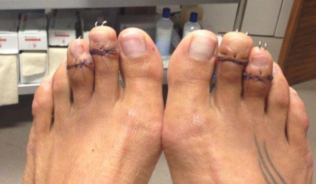 ayak bakımı, ayak ameliyatı