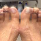 Topuklu ayakkabı giyebilmek için işkence çekiyorlar!