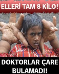 Doktorlar küçük çocuğun dev ellerine çare arıyor