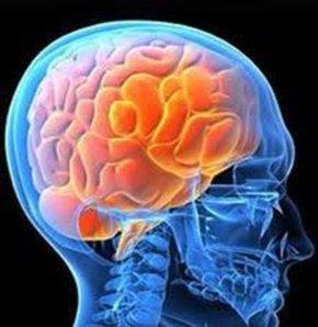 ALS Hastalığı Nedir? – Amyotrofik Lateral Skleroz