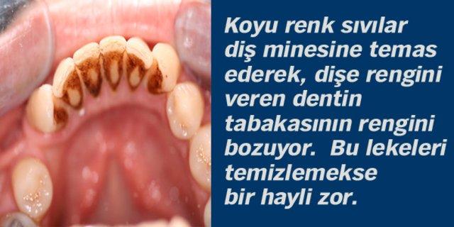 Sağlıklı dişler için bunlardan uzak durun!