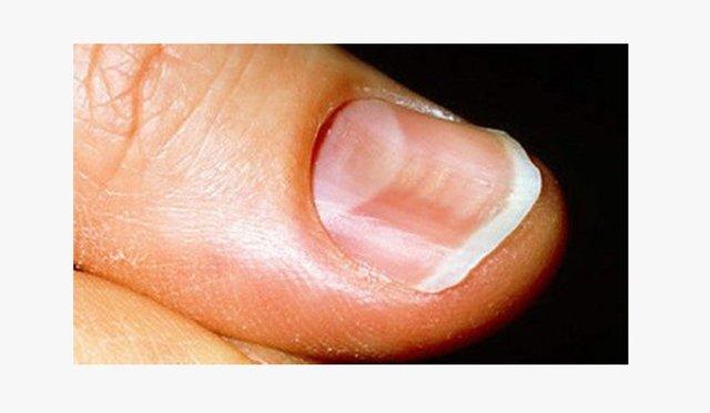 Кривые ногти на руках