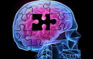 2030'da 70 milyon Alzheimer hastası olacak