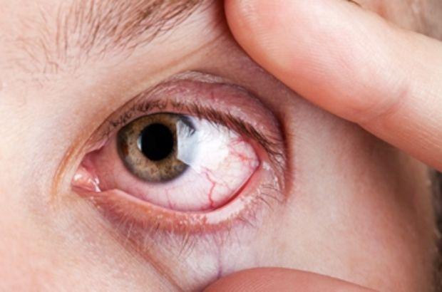Behçet hastalığı en sık Türkiye'de görülüyor, Prof. Dr. İhsan Ertenli, Hacettepe Üniversitesi Tıp Fakültesi Romatoloji Bilim Dalı, Behçet hastalığı, behçet hastalığı belirtileri, İpek Yolu hastalığı, Behçet hastalığı tedavisi