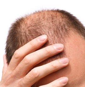 20'li yaşlardaki gençler seyrelmiş saçlarla yaşıyor