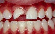Diş kırıklarına dikkat!
