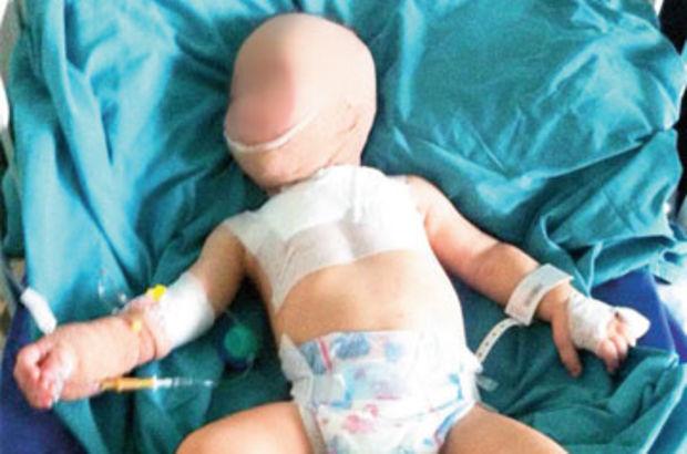1.5 yaşındaki bebeğin sigaralı 'ip'li işkencecisi belirlenemedi