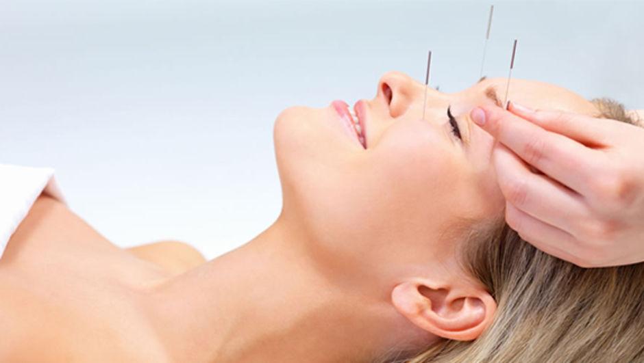 Akupunktur yüksek tansiyonu dize getiriyor