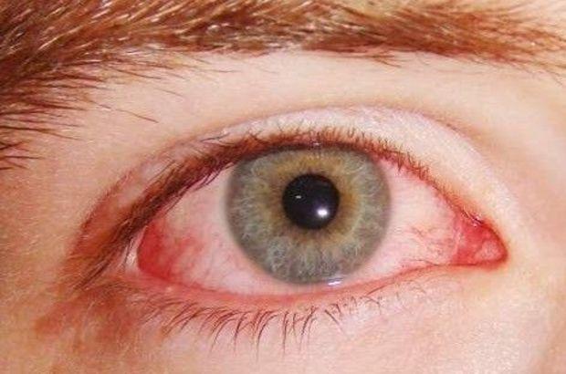 Adana'da göz enfeksiyonu salgını!, Göz Enfeksiyonu, Adana'da Salgın, Göz Hastalıkları