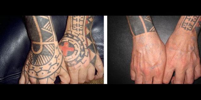 Kalıcı dövme sildirmek artık daha kolay, Dövme sildirmede yeni dönem, Kalıcı dövmelerinizden kurtulmak imkansız değil, dövme nasıl sildirilir, nasıl dövme sildirilir, dövmemi nasıl sildirebilirim