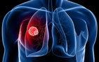 Ciğerden gelen kanser!
