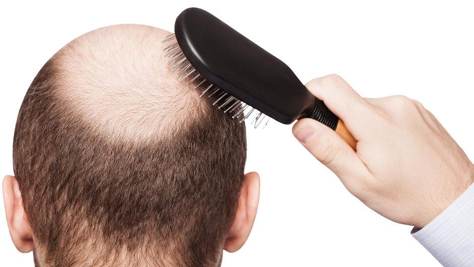 Kelliği durdurup saç çıkartan ilaç bulundu