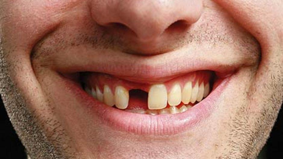 Во сне качается передний зуб