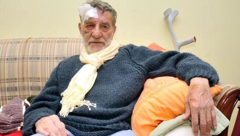 Ahmet Mekin, Antalya'da trafik kazası geçirdi...