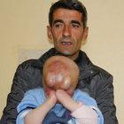 Minik Serkan Akbaş yüz nakli için yardım bekliyor
