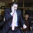 ABD Büyükelçisi'ne Güney Kore'de usturalı saldırı