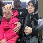 Erzurum'da yüzünde tümör çıkan Zeynep Tavşan için yardım hesabı açıldı