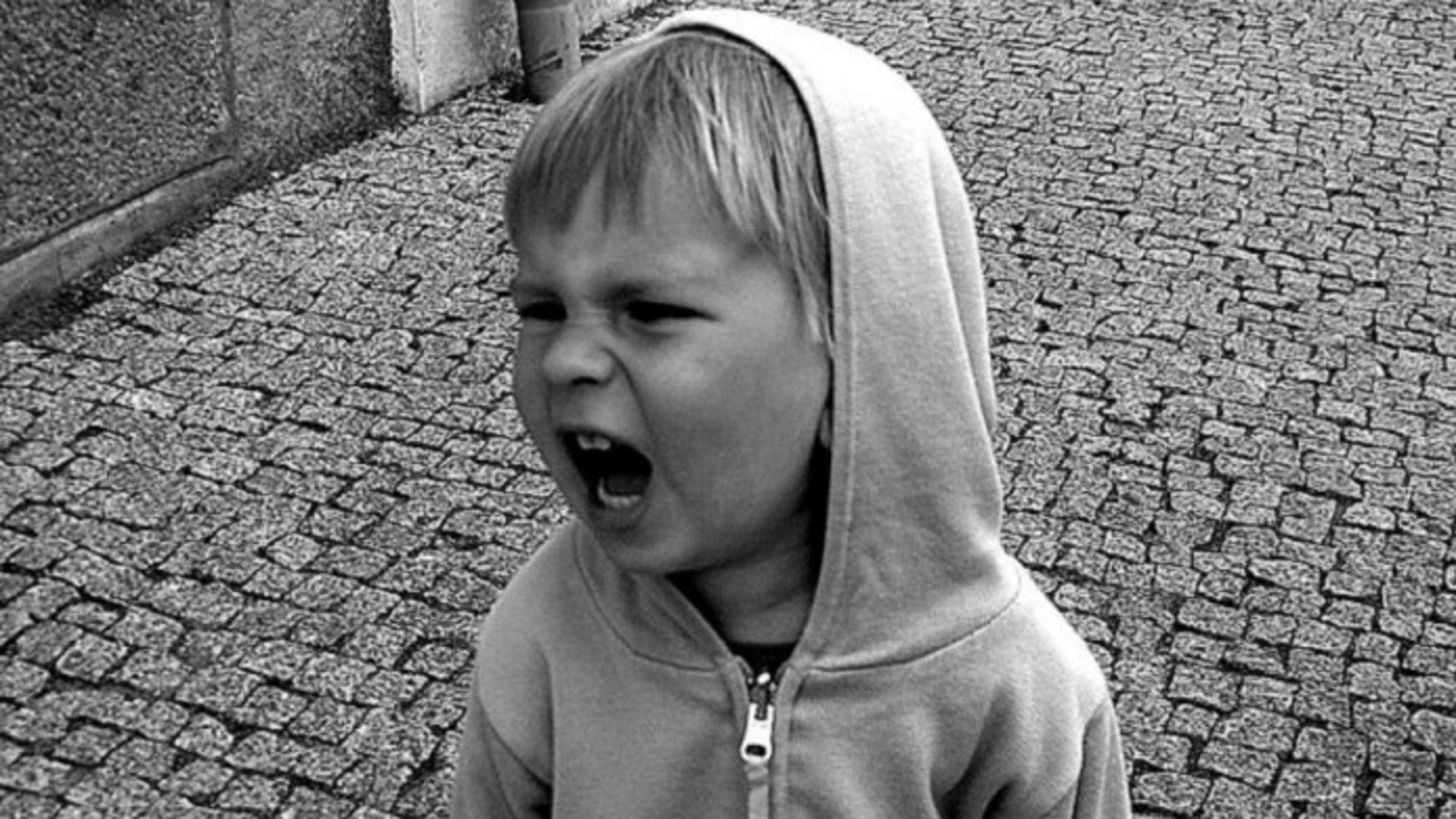 Narsist çocuk sendromu