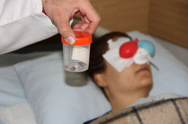 Malatya'da nefes almakta güçlük çektiği için doktora başvuran kadının burnundan silgi çıktı