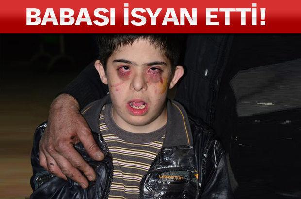 13 yaşındaki Şakir Ethem Bozdoğanlı, rehabilitasyon merkezinden gözleri morarmış, yüzü yaralı halde döndü.