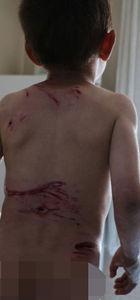 Şemdinli'de 5 yaşındaki Eyüp köpeklerin saldırısına uğradı