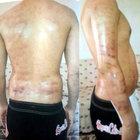 Vücudu yüzde 18 yakan epilasyona 1500 lira ceza