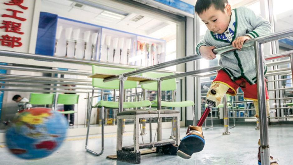 Xiao Feng, protez bacak