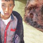 Bitlis'te eve giren porsuk çocuklara saldırdı