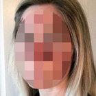 Cilt kanserine yakalanan kadın farkındalık için bir fotoğraf paylaştı