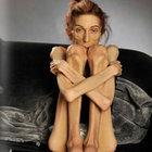 Anoreksiya yakalanan genç kadın 20 kiloya düştü!