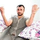 Yanan otobüsün şoförü Yakup Tunç taburcu oldu