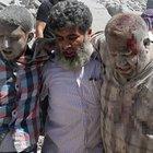 Suriye'nin Halep kentinde patlama