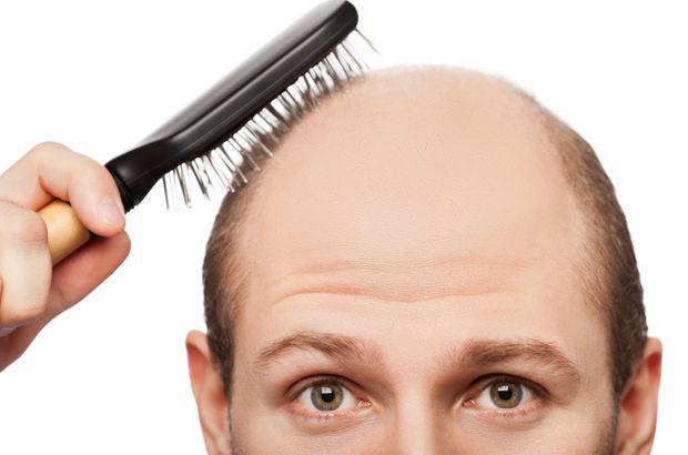 Saç aşısıyla tek seansta kellik tedavisi